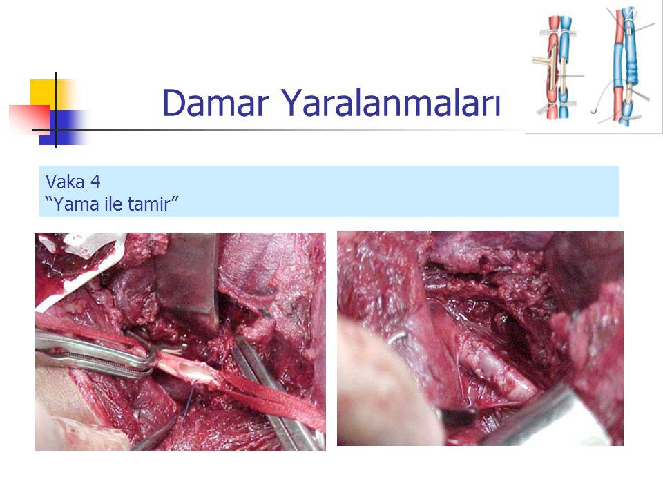Damar Yaralanmaları Vaka 4 Yama ile tamir