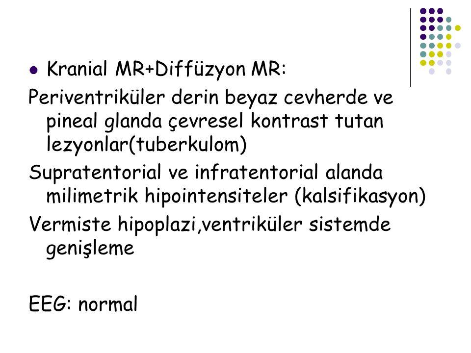 Kranial MR+Diffüzyon MR: