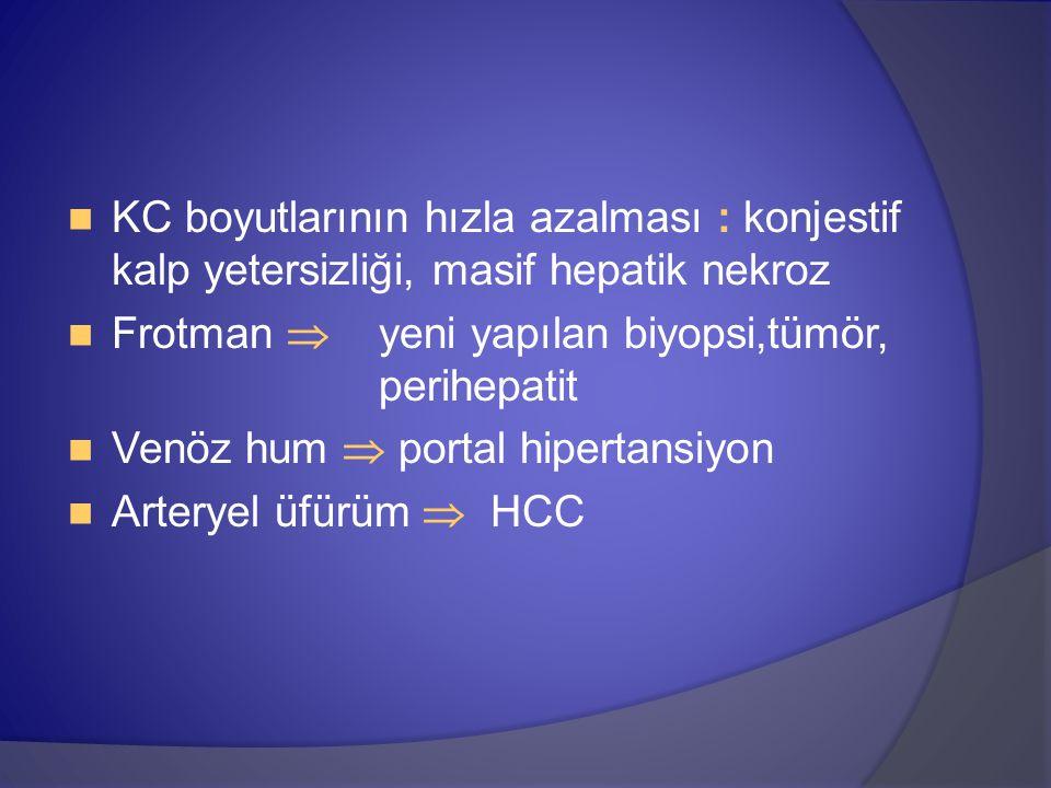 KC boyutlarının hızla azalması : konjestif kalp yetersizliği, masif hepatik nekroz