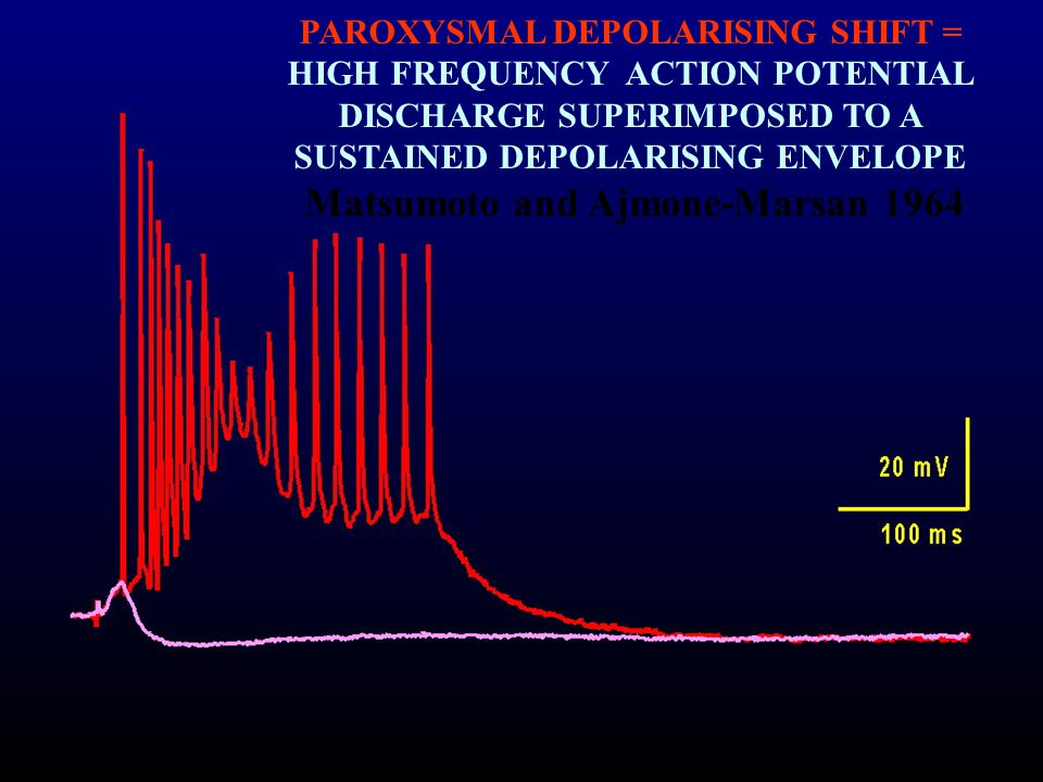 PAROXYSMAL DEPOLARISING SHIFT = HIGH FREQUENCY ACTION POTENTIAL DISCHARGE SUPERIMPOSED TO A SUSTAINED DEPOLARISING ENVELOPE Matsumoto and Ajmone-Marsan 1964