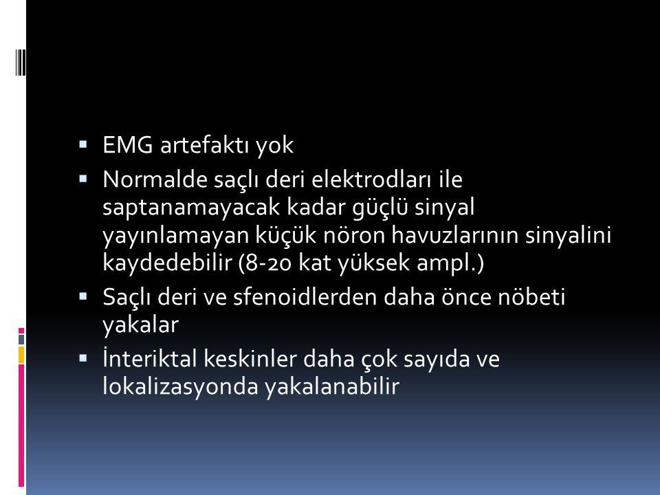 EMG artefaktı yok