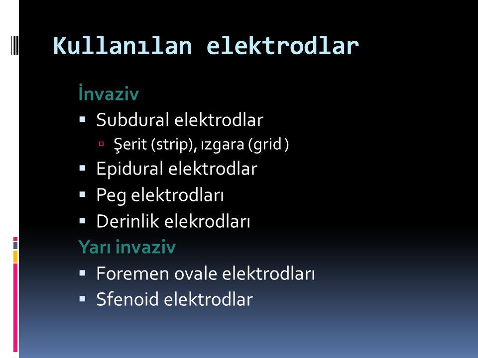 Kullanılan elektrodlar