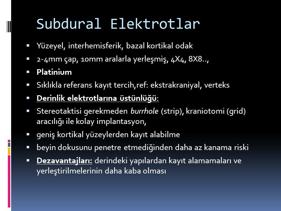 Subdural Elektrotlar Yüzeyel, interhemisferik, bazal kortikal odak