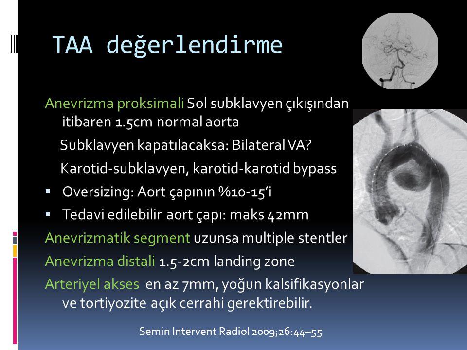 TAA değerlendirme Anevrizma proksimali Sol subklavyen çıkışından itibaren 1.5cm normal aorta. Subklavyen kapatılacaksa: Bilateral VA