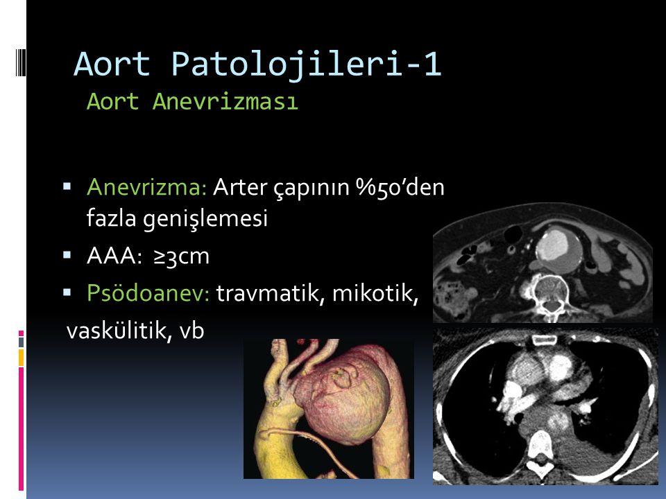 Aort Patolojileri-1 Aort Anevrizması