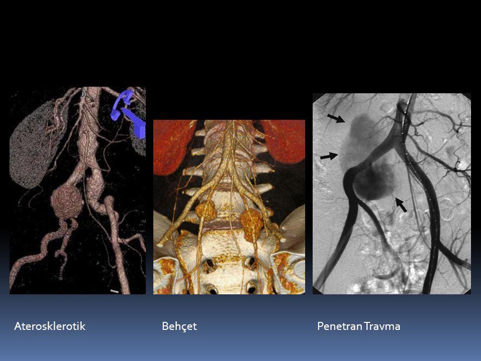 Aterosklerotik Behçet Penetran Travma