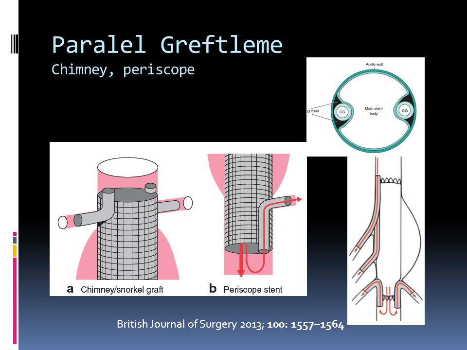 Paralel Greftleme Chimney, periscope