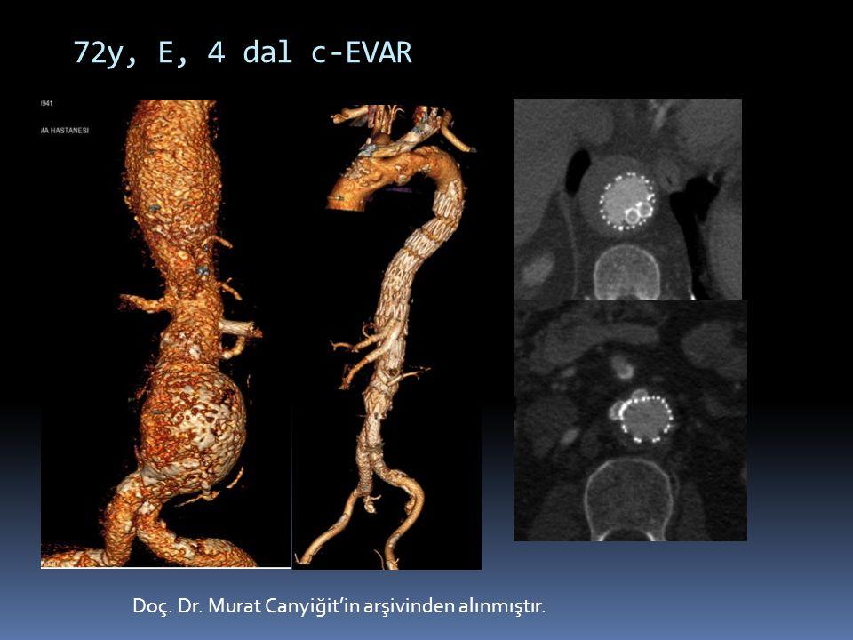 72y, E, 4 dal c-EVAR Doç. Dr. Murat Canyiğit'in arşivinden alınmıştır.