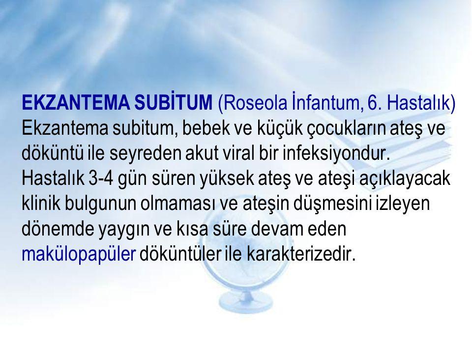 EKZANTEMA SUBİTUM (Roseola İnfantum, 6