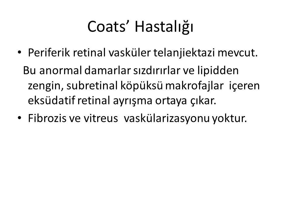 Coats' Hastalığı Periferik retinal vasküler telanjiektazi mevcut.