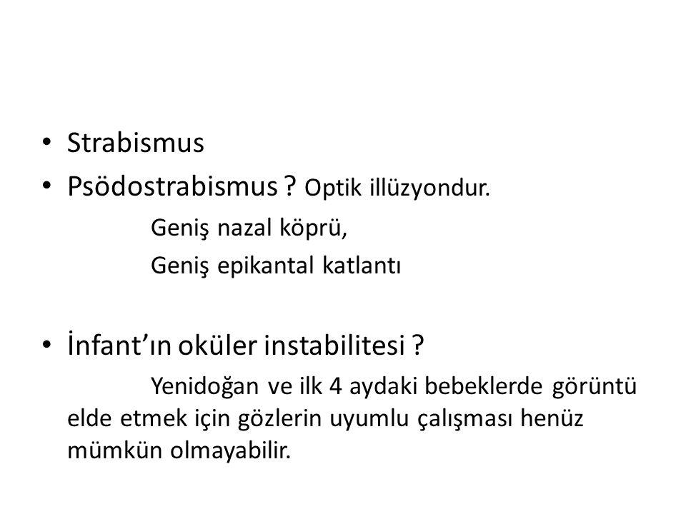 Psödostrabismus Optik illüzyondur.