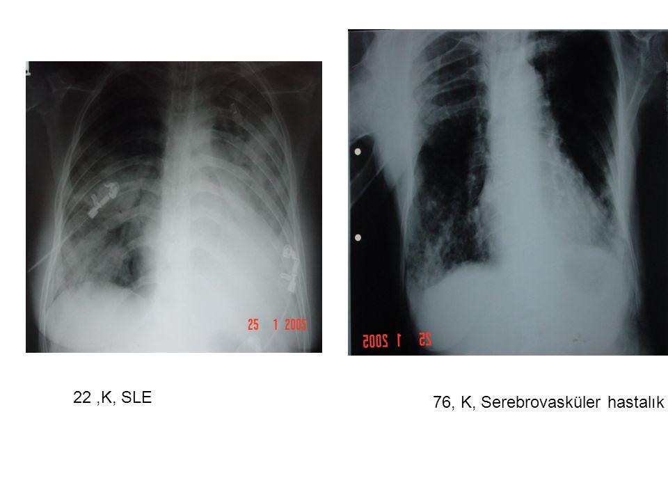 22 ,K, SLE 76, K, Serebrovasküler hastalık