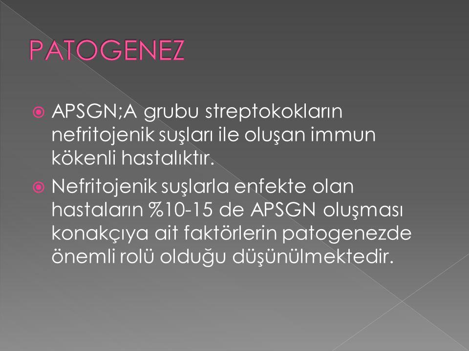 PATOGENEZ APSGN;A grubu streptokokların nefritojenik suşları ile oluşan immun kökenli hastalıktır.