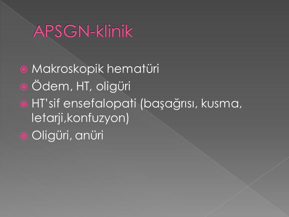 APSGN-klinik Makroskopik hematüri Ödem, HT, oligüri