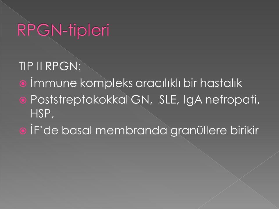 RPGN-tipleri TIP II RPGN: İmmune kompleks aracılıklı bir hastalık