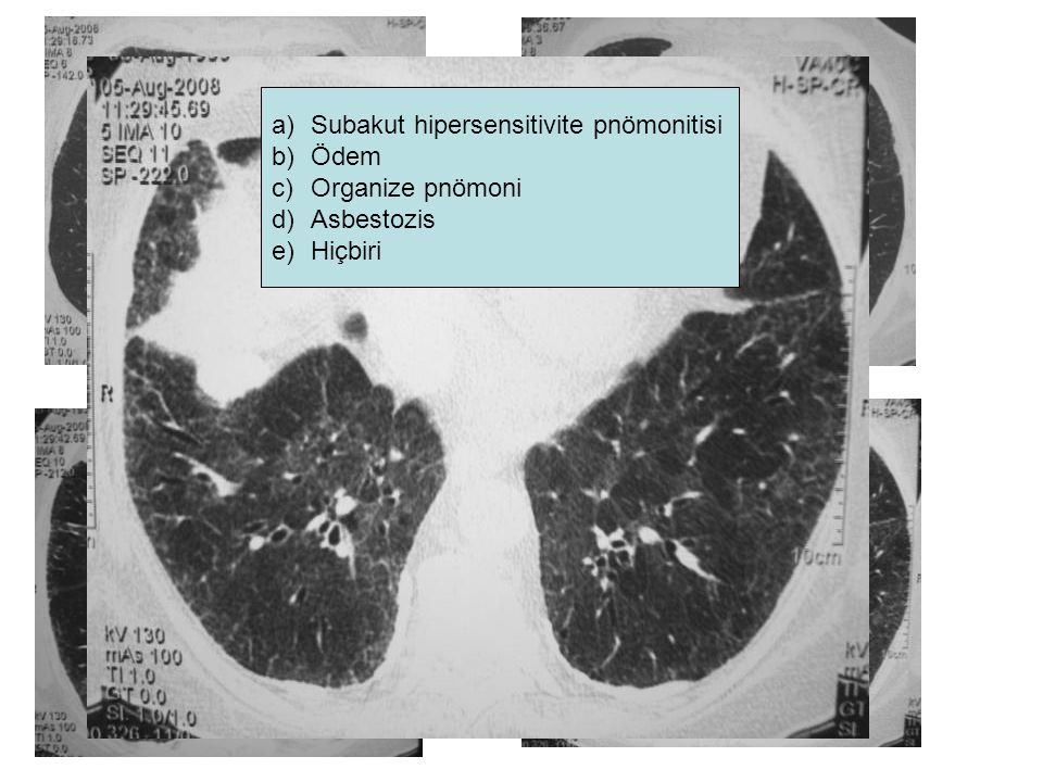 Subakut hipersensitivite pnömonitisi