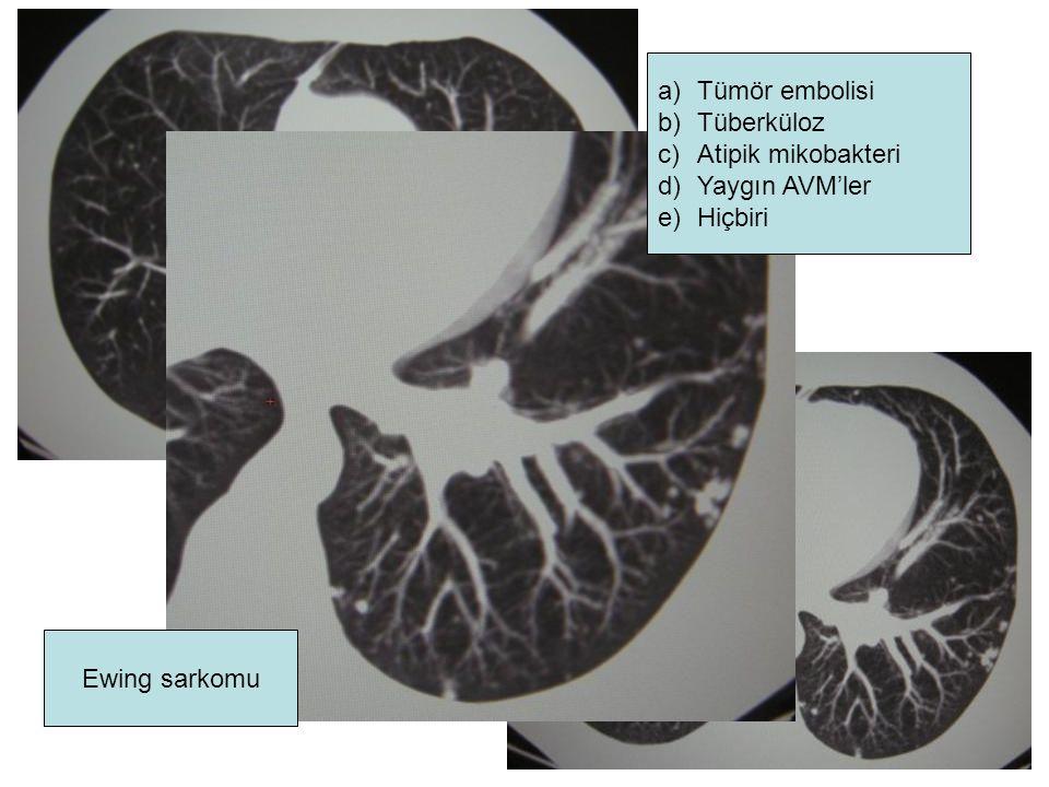Tümör embolisi Tüberküloz Atipik mikobakteri Yaygın AVM'ler Hiçbiri Ewing sarkomu