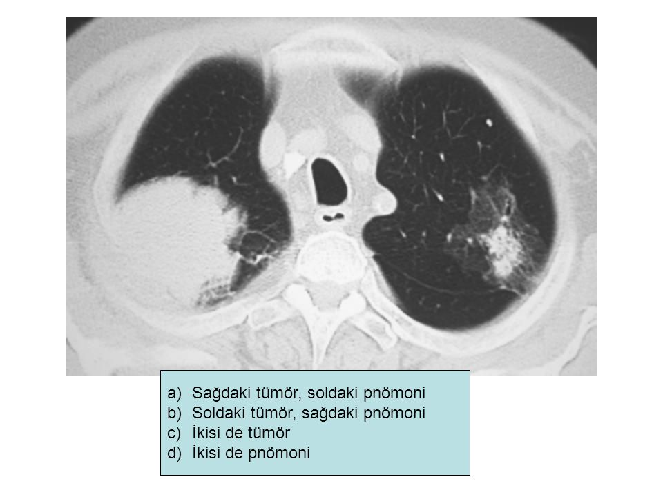 Sağdaki tümör, soldaki pnömoni