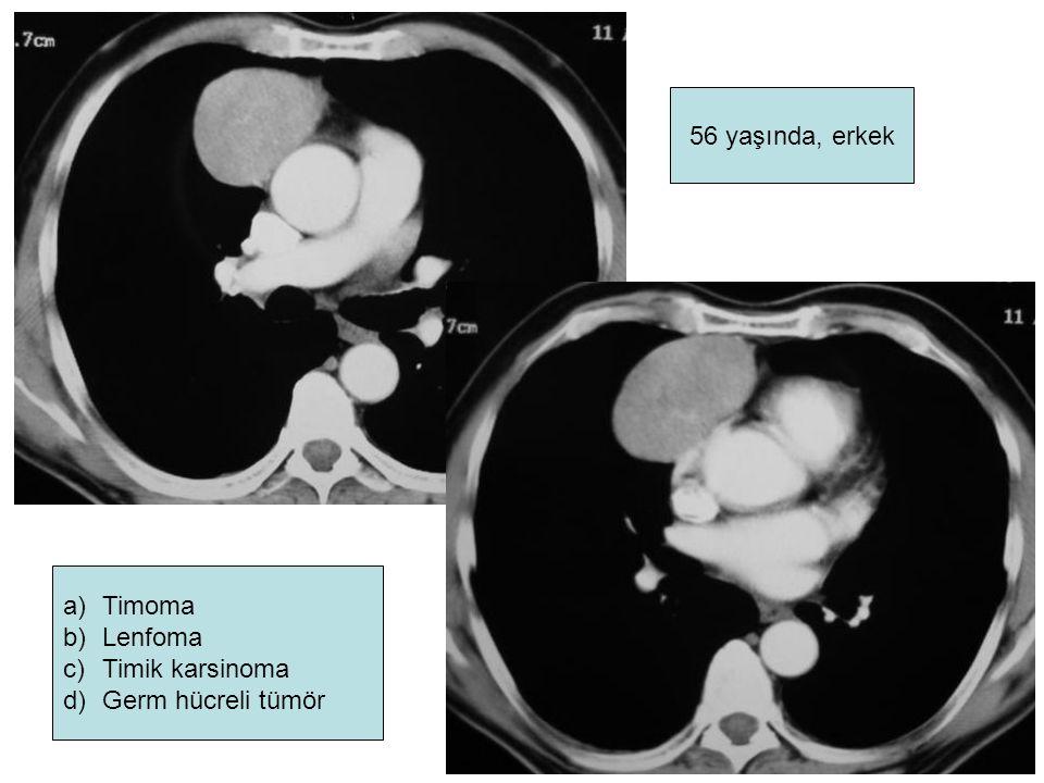 56 yaşında, erkek Timoma Lenfoma Timik karsinoma Germ hücreli tümör