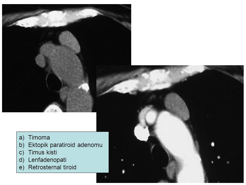 Timoma Ektopik paratiroid adenomu Timus kisti Lenfadenopati Retrosternal tiroid