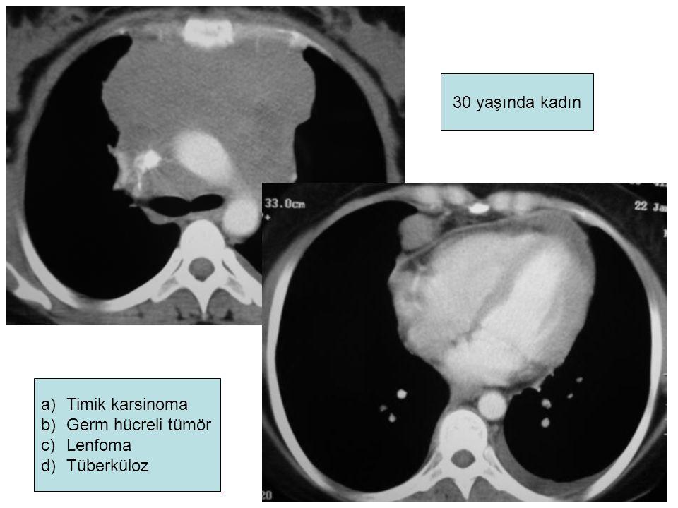 30 yaşında kadın Timik karsinoma Germ hücreli tümör Lenfoma Tüberküloz