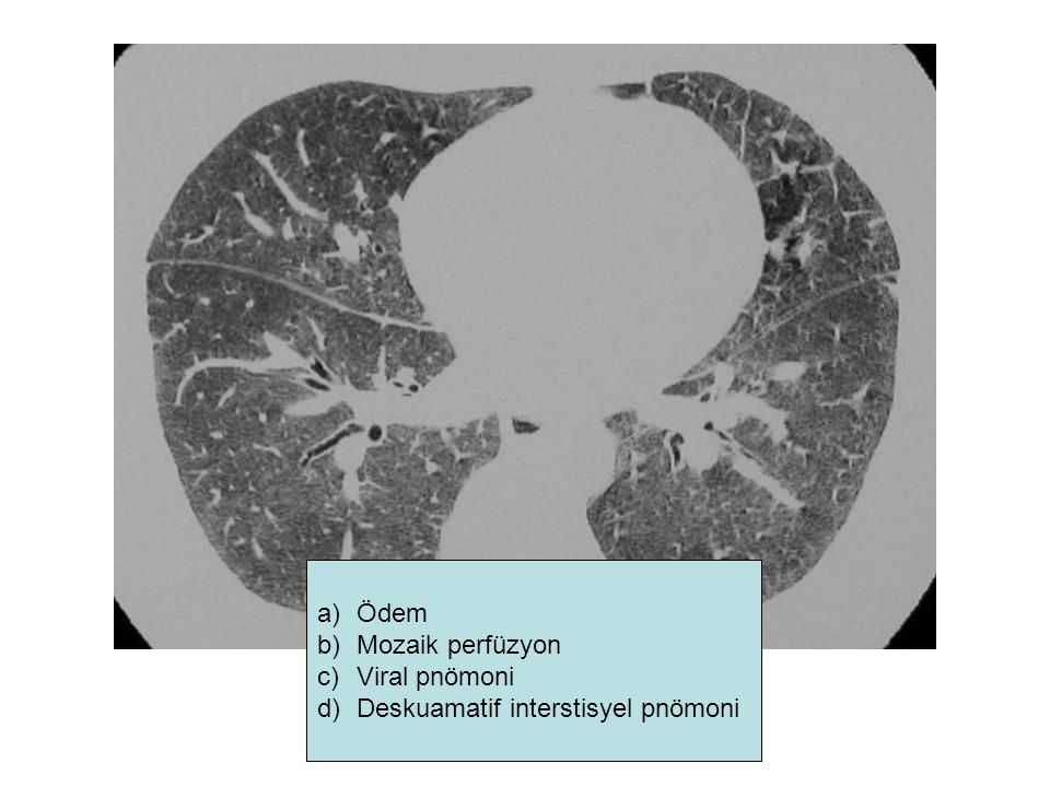 Ödem Mozaik perfüzyon Viral pnömoni Deskuamatif interstisyel pnömoni