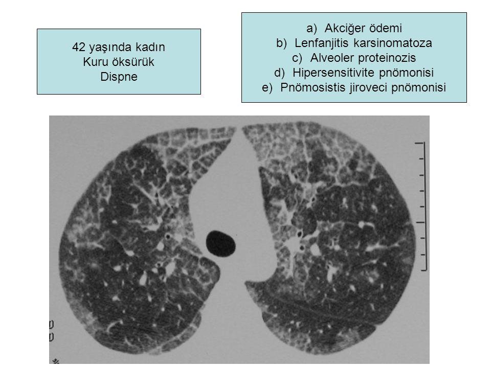 Lenfanjitis karsinomatoza Alveoler proteinozis