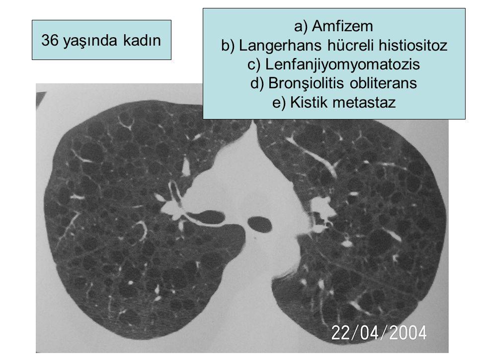 Langerhans hücreli histiositoz Lenfanjiyomyomatozis
