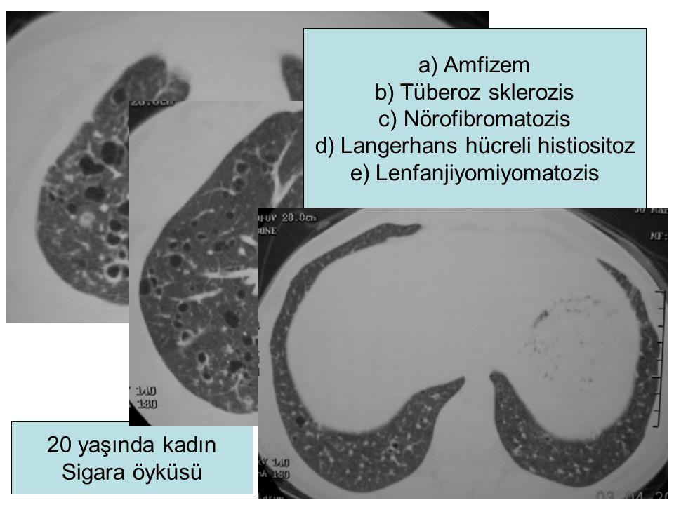 Langerhans hücreli histiositoz Lenfanjiyomiyomatozis