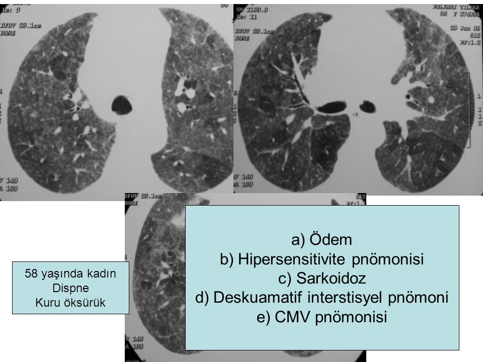 Hipersensitivite pnömonisi Sarkoidoz Deskuamatif interstisyel pnömoni