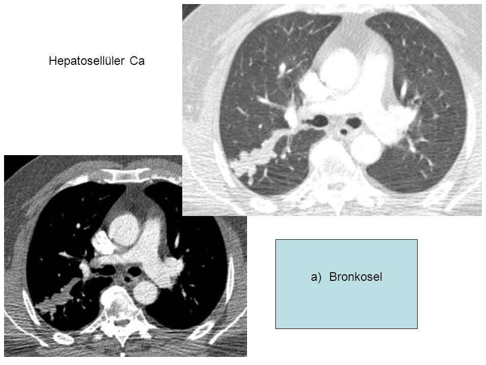 Hepatosellüler Ca Hcc tümör embolisi Bronkosel