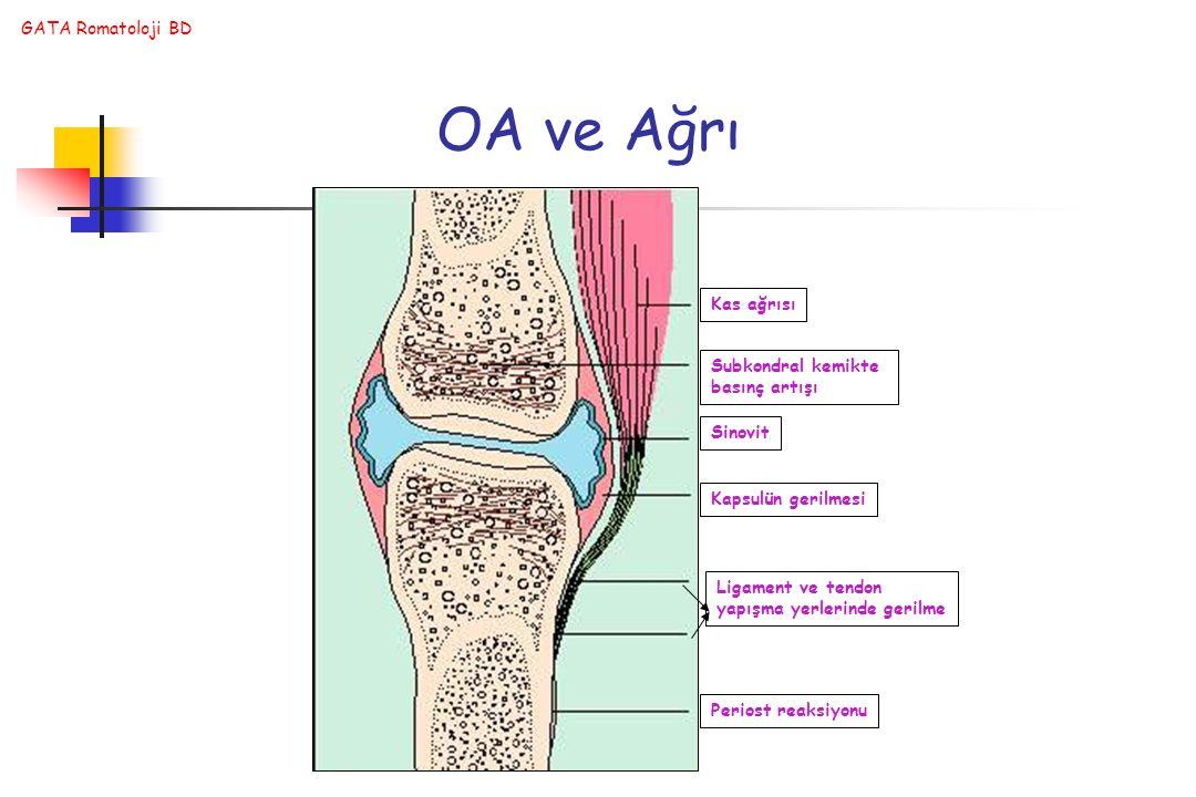 OA ve Ağrı Kas ağrısı Subkondral kemikte basınç artışı Sinovit