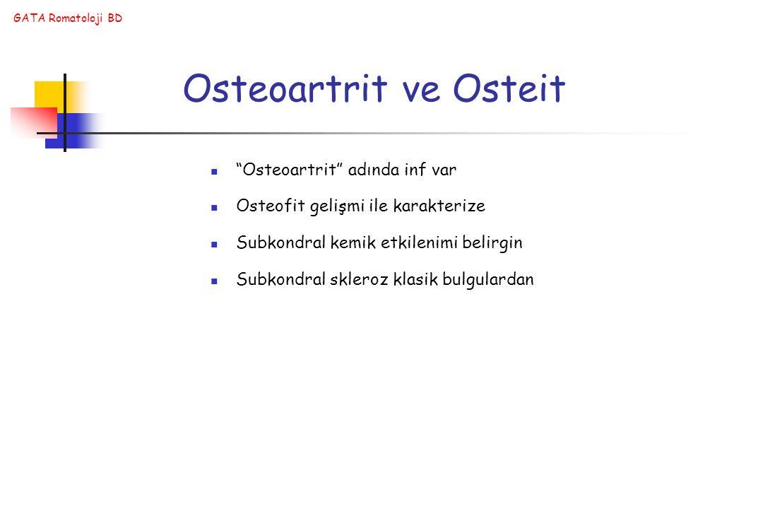 Osteoartrit ve Osteit Osteoartrit adında inf var