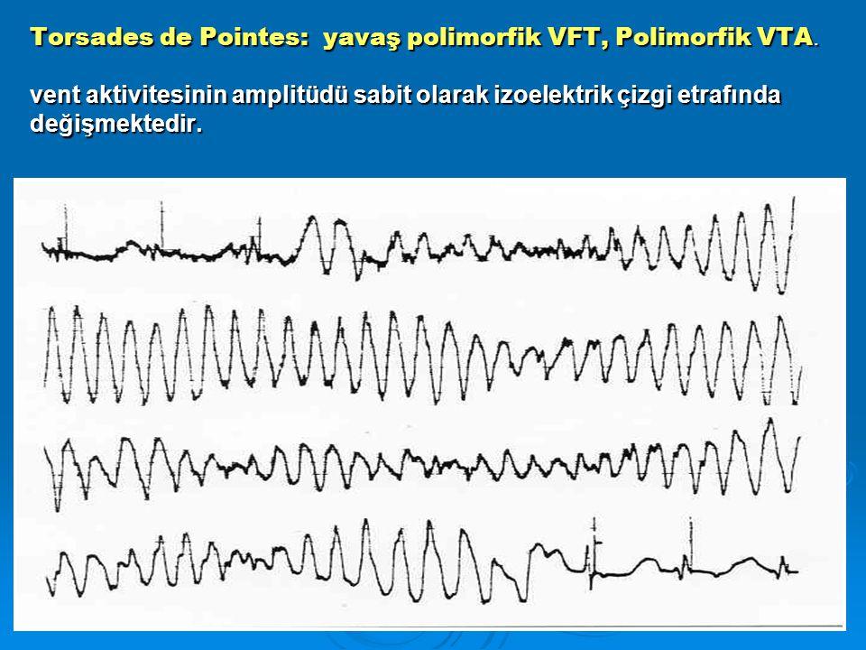 Torsades de Pointes: yavaş polimorfik VFT, Polimorfik VTA