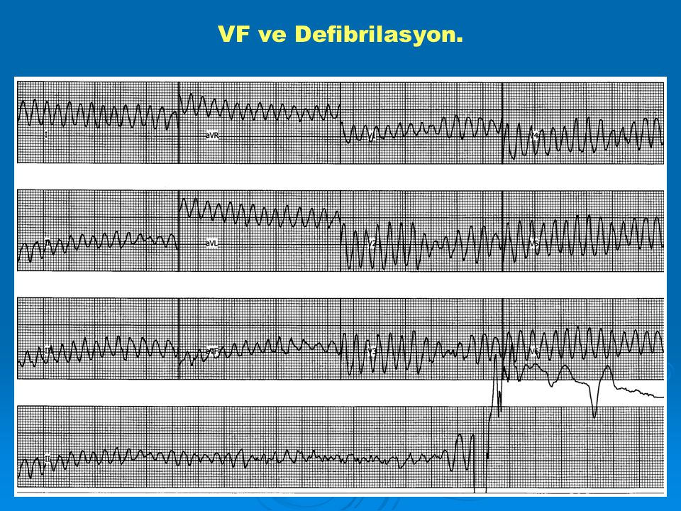 VF ve Defibrilasyon.