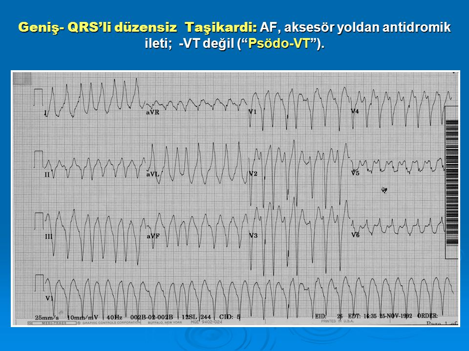 Geniş- QRS'li düzensiz Taşikardi: AF, aksesör yoldan antidromik ileti; -VT değil ( Psödo-VT ).