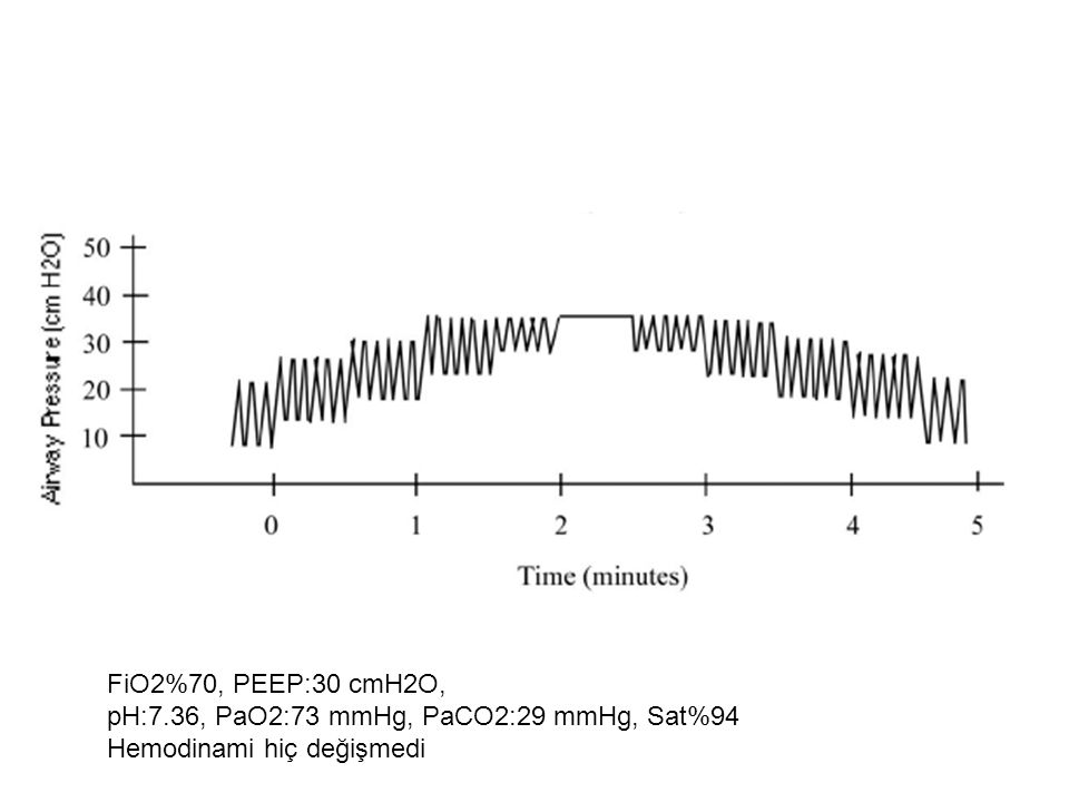 FiO2%70, PEEP:30 cmH2O, pH:7.36, PaO2:73 mmHg, PaCO2:29 mmHg, Sat%94 Hemodinami hiç değişmedi