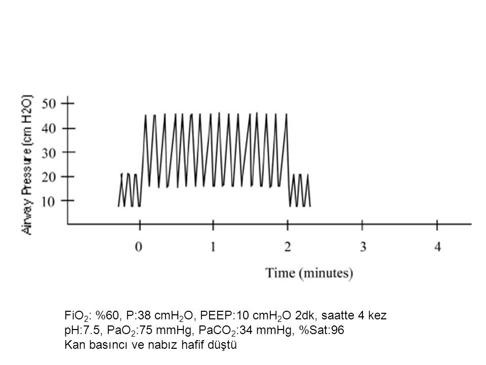 FiO2: %60, P:38 cmH2O, PEEP:10 cmH2O 2dk, saatte 4 kez