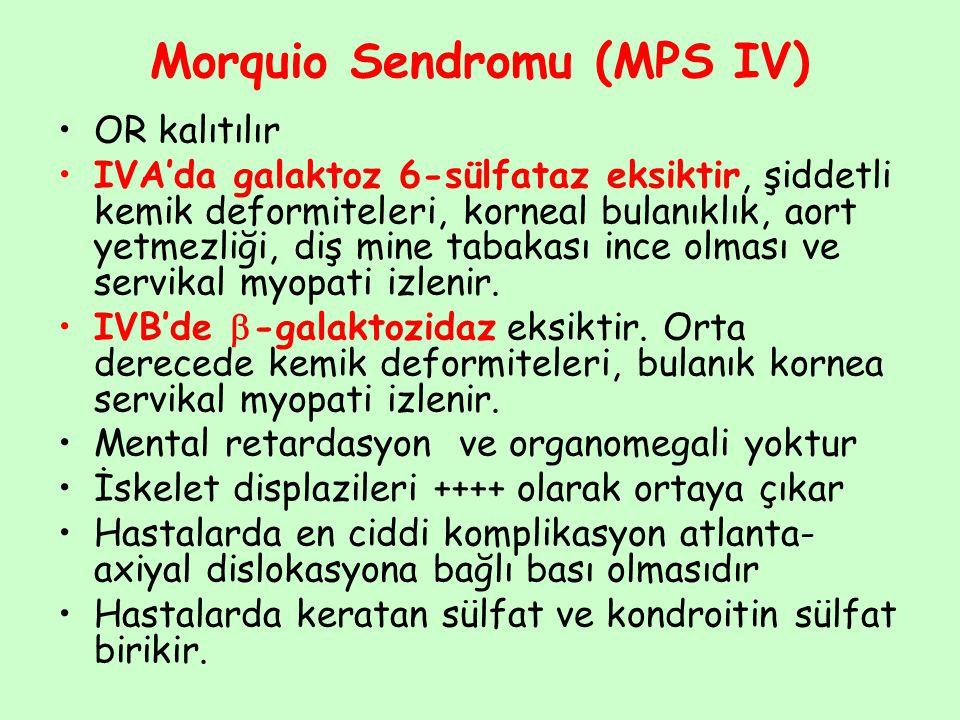 Morquio Sendromu (MPS IV)