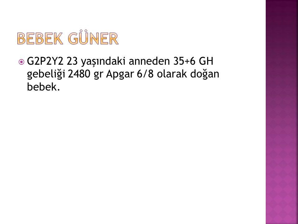 Bebek GÜNER G2P2Y2 23 yaşındaki anneden 35+6 GH gebeliği 2480 gr Apgar 6/8 olarak doğan bebek.