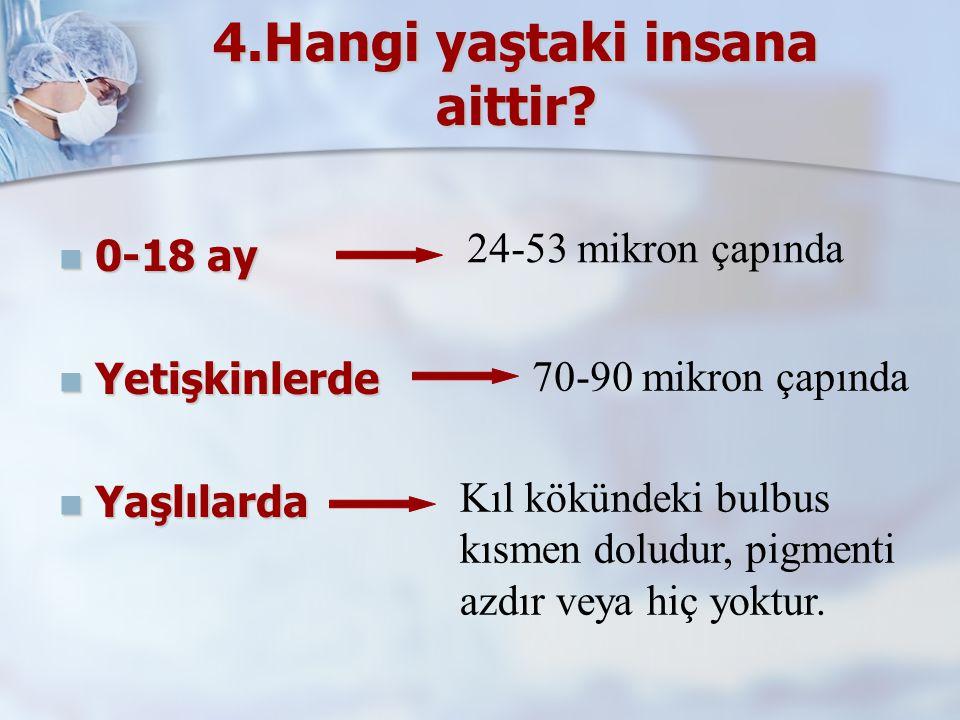 4.Hangi yaştaki insana aittir