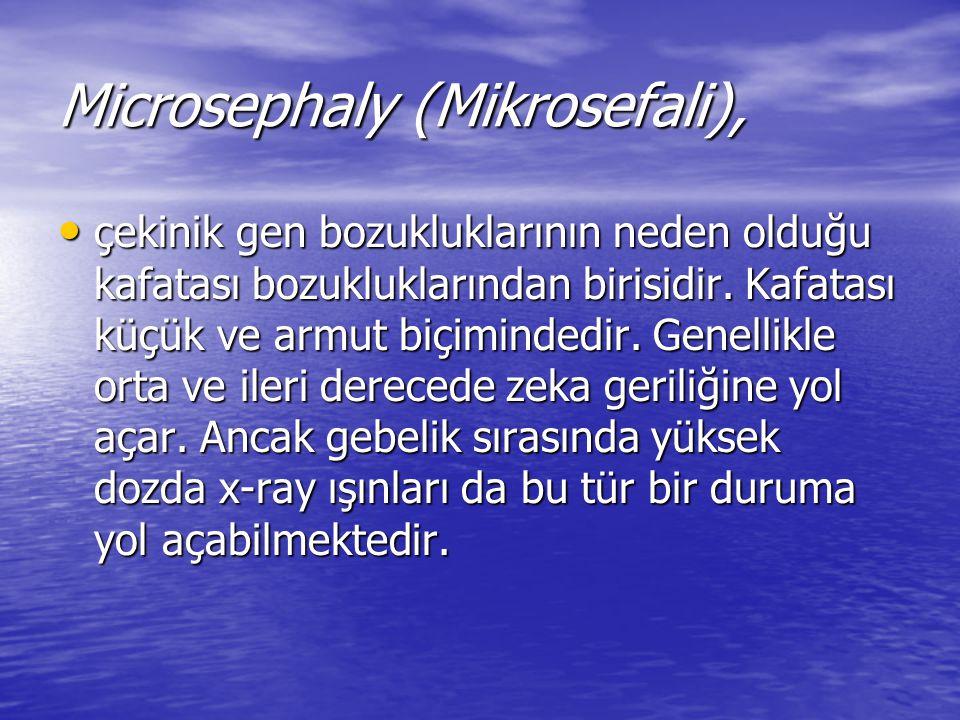Microsephaly (Mikrosefali),