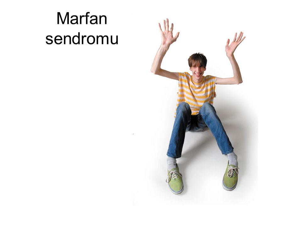 Marfan sendromu