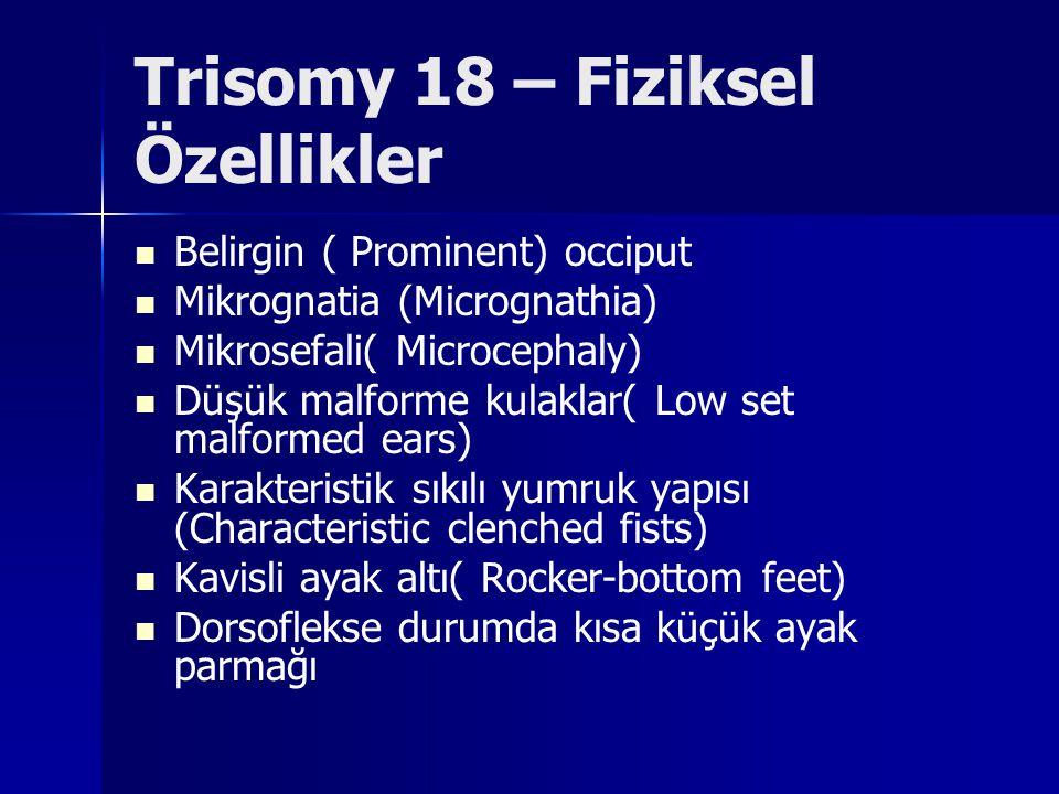 Trisomy 18 – Fiziksel Özellikler