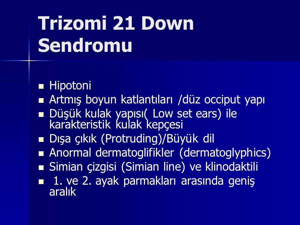 Trizomi 21 Down Sendromu Hipotoni