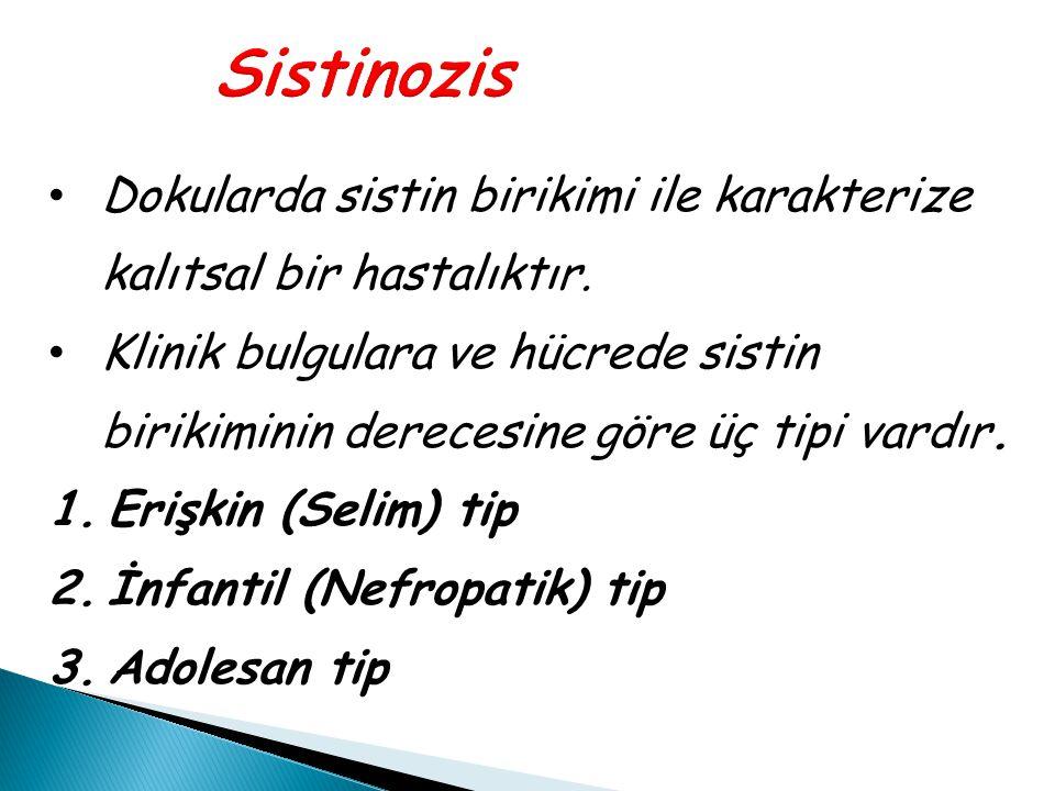 Sistinozis Dokularda sistin birikimi ile karakterize kalıtsal bir hastalıktır.