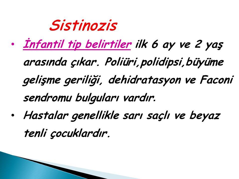 Sistinozis