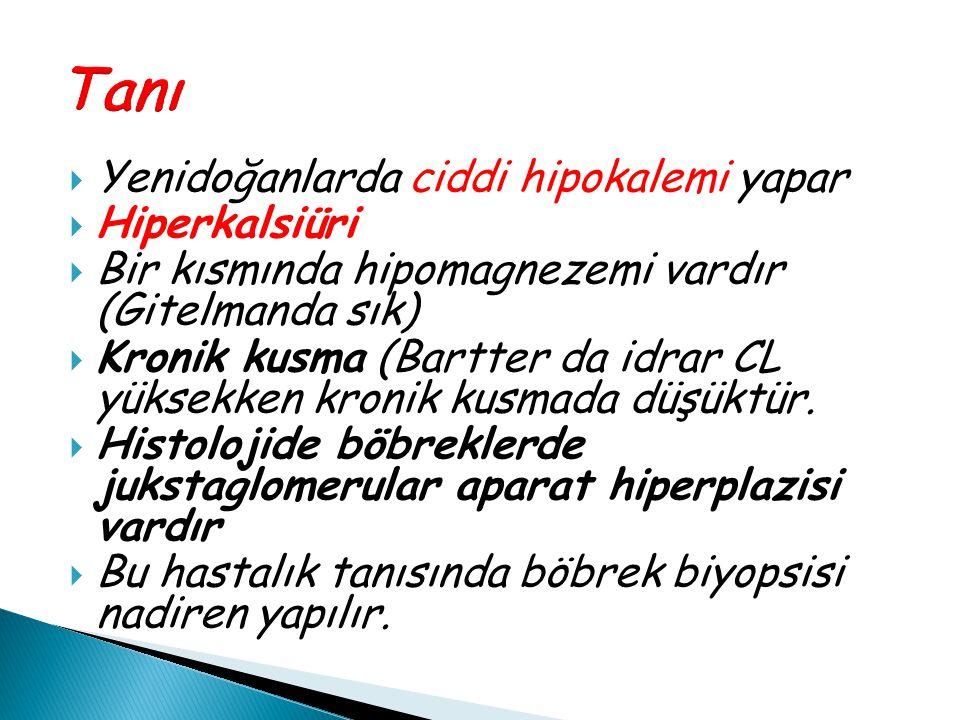 Tanı Yenidoğanlarda ciddi hipokalemi yapar Hiperkalsiüri