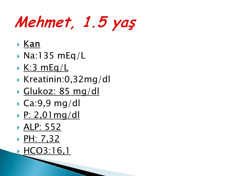 Mehmet, 1.5 yaş Kan Na:135 mEq/L K:3 mEq/L Kreatinin:0,32mg/dl