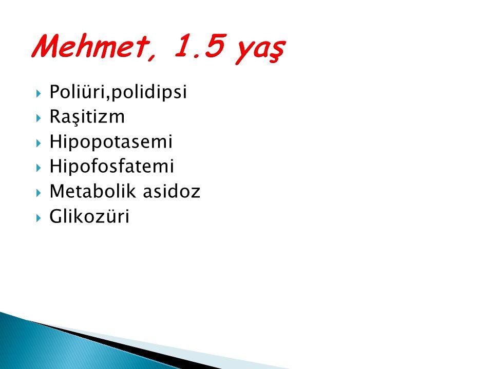 Mehmet, 1.5 yaş Poliüri,polidipsi Raşitizm Hipopotasemi Hipofosfatemi